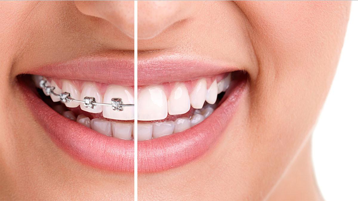 ortodonzija